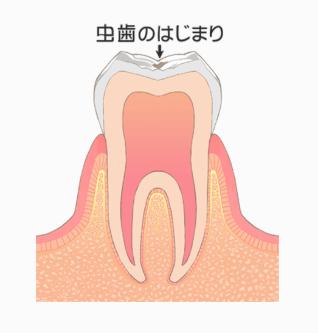 むし歯の段階:CO