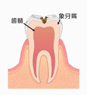 むし歯の段階:C2
