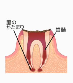 むし歯の段階:C4