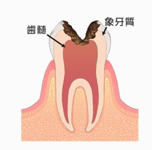 むし歯の段階:C3